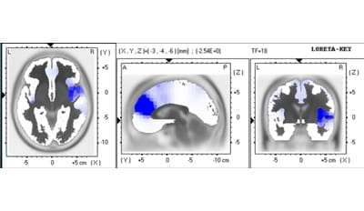 LORETA localization of reduction (in blue) of post vs. pre-operative cortical overactivities measured with EEG