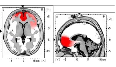 LORETA Lokalisierung von kortikale Überaktivitäten (Rot) mit EEG gemessen.