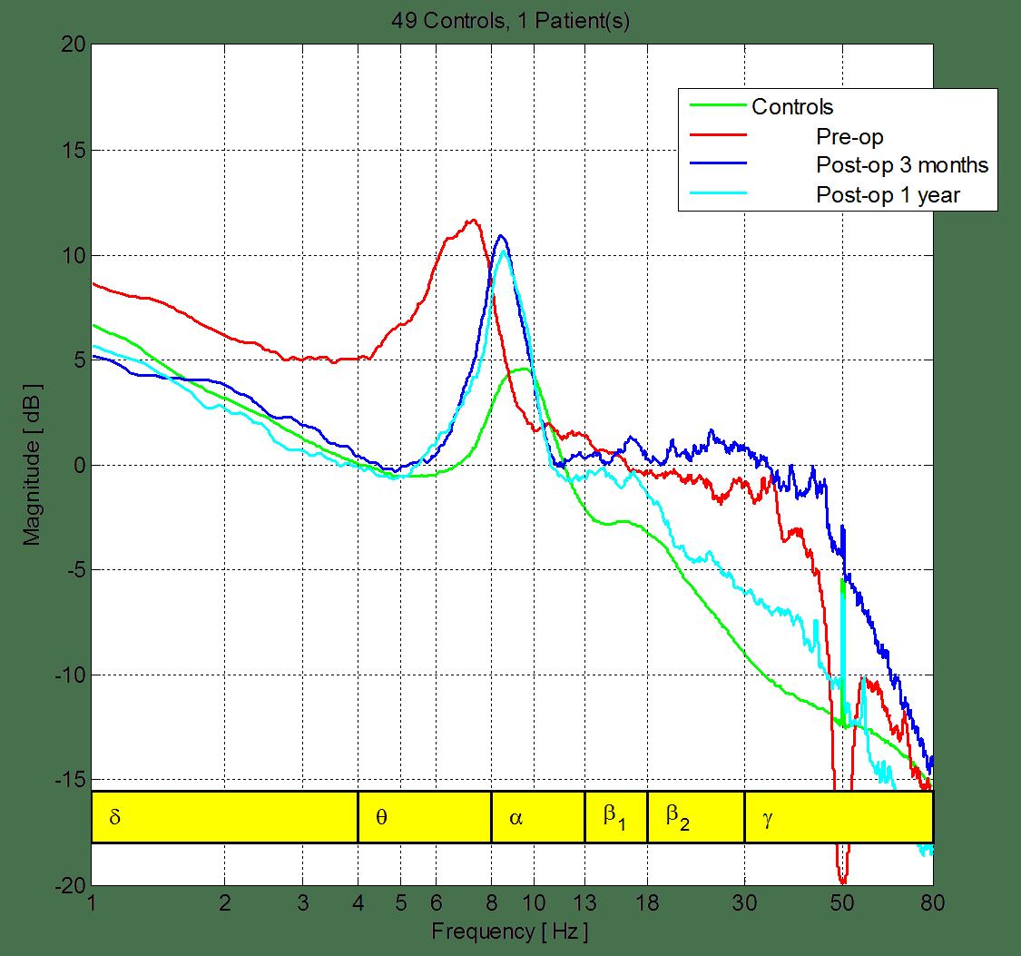 Pre-Post_EEG